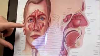 Diagnosing Sinus Infections