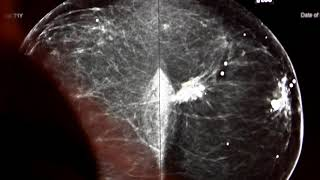 New Injection Technology to Pinpoint Breast Cancer